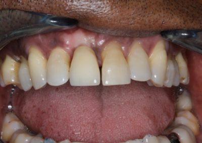 Dr. Born dentiste Lausanne