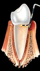 Parodontite 5 mm