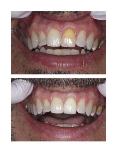 éclaircissement de la teinte d'une dent
